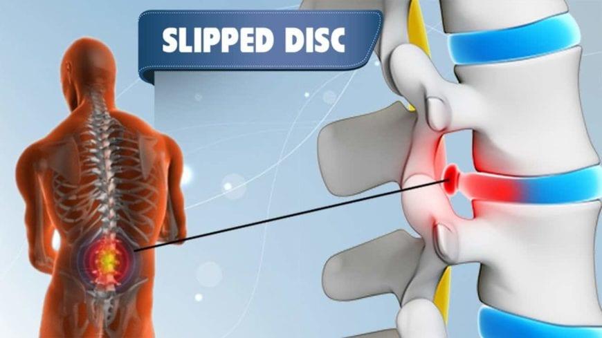 slip-disc